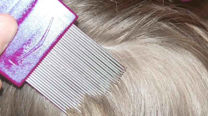 Как вывести вшей из волос в домашних условиях